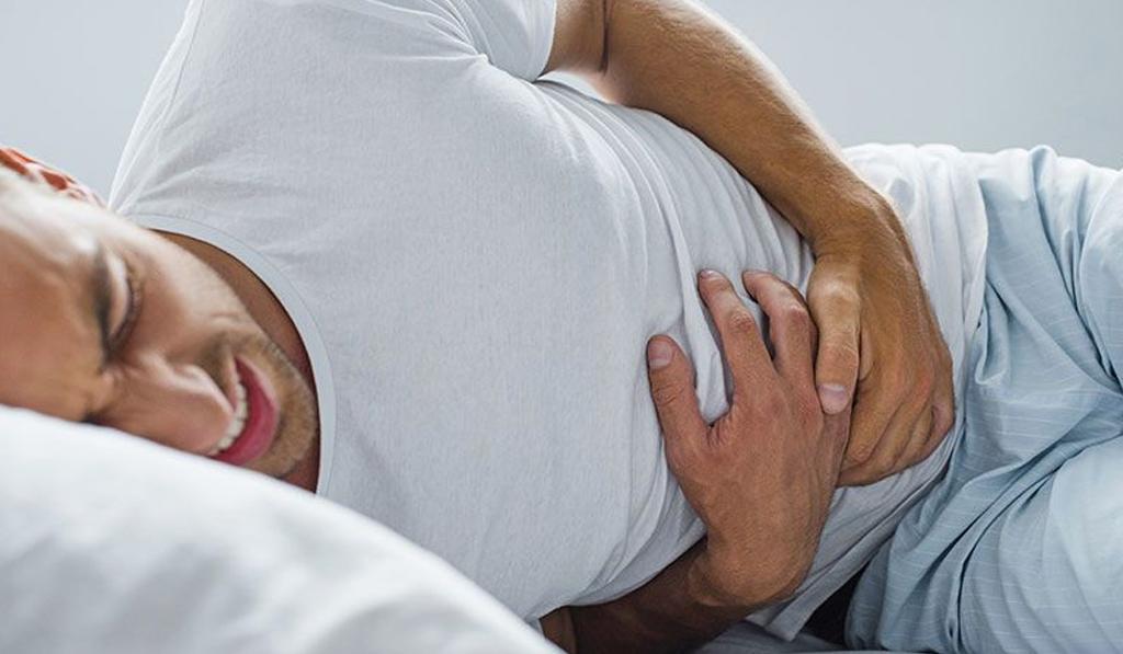 Diverticulitis, síntomas y causas